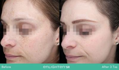 Our Cutera Laser PICO Genesis is the premier solution to skin aging, pigmentation and acne scars.